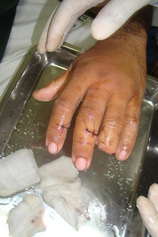 Delegado teve um dedo decepado